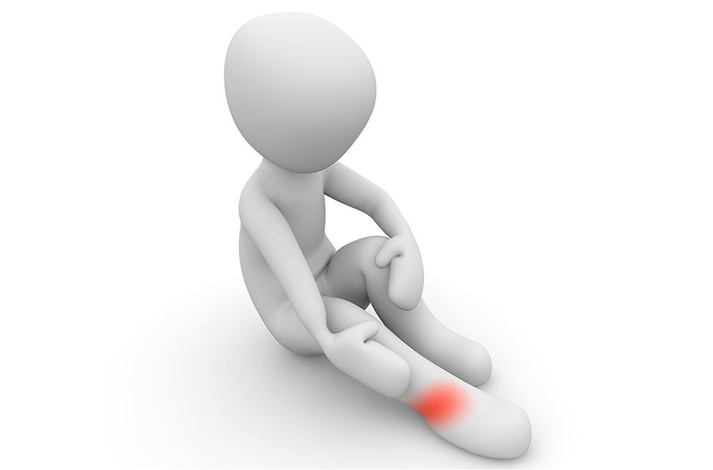 RMI study and clinical correlations of ankle retinacula damage and outcomes of ankle sprain